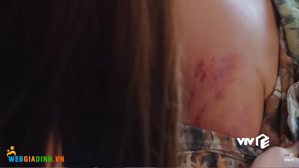 Vết thương bị đánh ở cánh tay bố bị Nam phát hiện.